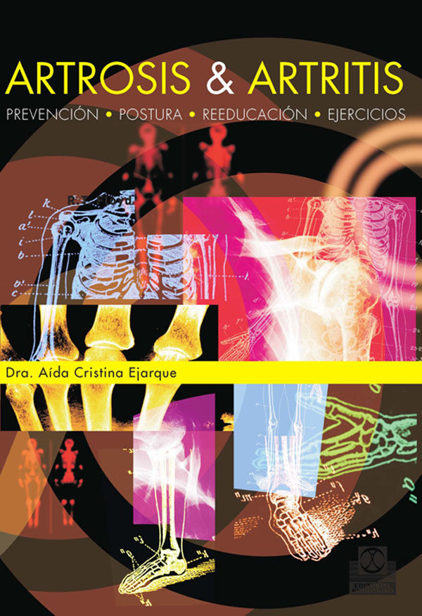 Artrosis Y Artritis por Aida Cristina Ejarque