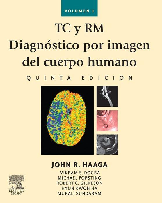 TC Y RM. DIAGNÓSTICO POR IMAGEN DEL CUERPO HUMANO EBOOK | JOHN R ...