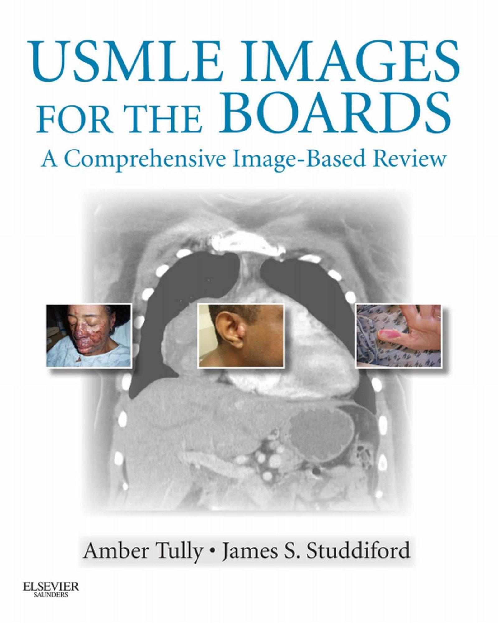 USMLE IMAGES FOR THE BOARDS E-BOOK EBOOK | TULLY | Descargar libro ...