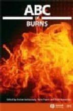 Abc of burns Descarga gratuita de Amazon book downloader