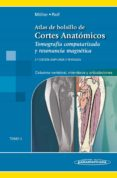 ATLAS CORTES ANATÓMICOS, 2ª ED T3 - 9788491102694 - TORSTEN B. MÖLLER