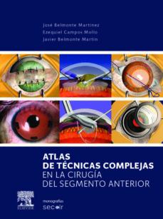 Ebook descargar ebook ATLAS DE CASOS COMPLEJOS DE CIRUGIA DEL SEGMENTO ANTERIOR (Spanish Edition) de J. M. BELMONTE PDF ePub