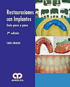 Libro de descarga en línea RESTAURACIONES CON IMPLANTES. GUIA PASO A PASO de CARL DRAGO 9789588473024
