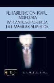 Viamistica.es Rehabilitacion Total Inmediata Implantosoportada Del Maxilar Supe Rior Image