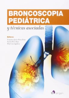 Descargar libros de texto para torrents gratuitos. BRONCOSCOPIA PEDIATRICA Y TECNICAS ASOCIADAS (Spanish Edition)