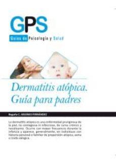 Descarga gratuita de libros de kindle DERMATITIS ATOPICA de BEGOÑA ARJONES FERNANDEZ in Spanish 9788415675594